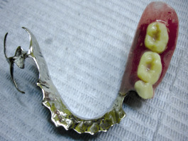 Unilateral partial denture - Denture replacing one side of back teeth only