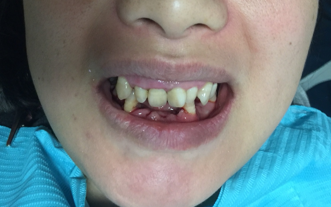 Patient presents with gummy smile and missing teeth due to severe periodontal disease.