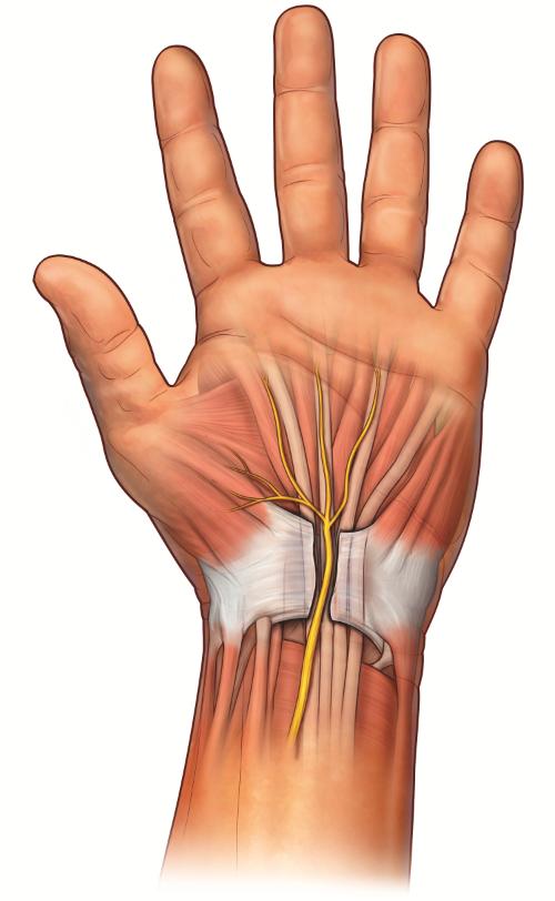 La inflamación en el túnel carpiano puede comprimir el nervio mediano, provocando el STC. Los tratamientos quirúrgicos cortan el ligamento carpiano transversal para hacer espacio para el nervio. Finalmente, el nuevo tejido llenará el espacio donde se cortó el ligamento.