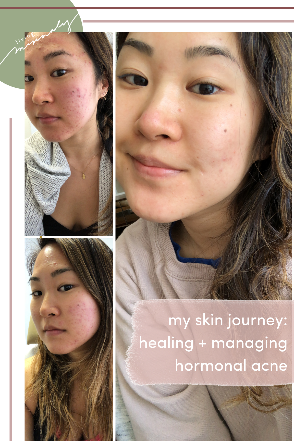 My Skin Journey: Healing + Managing Adult Hormonal Acne | Living Minnaly