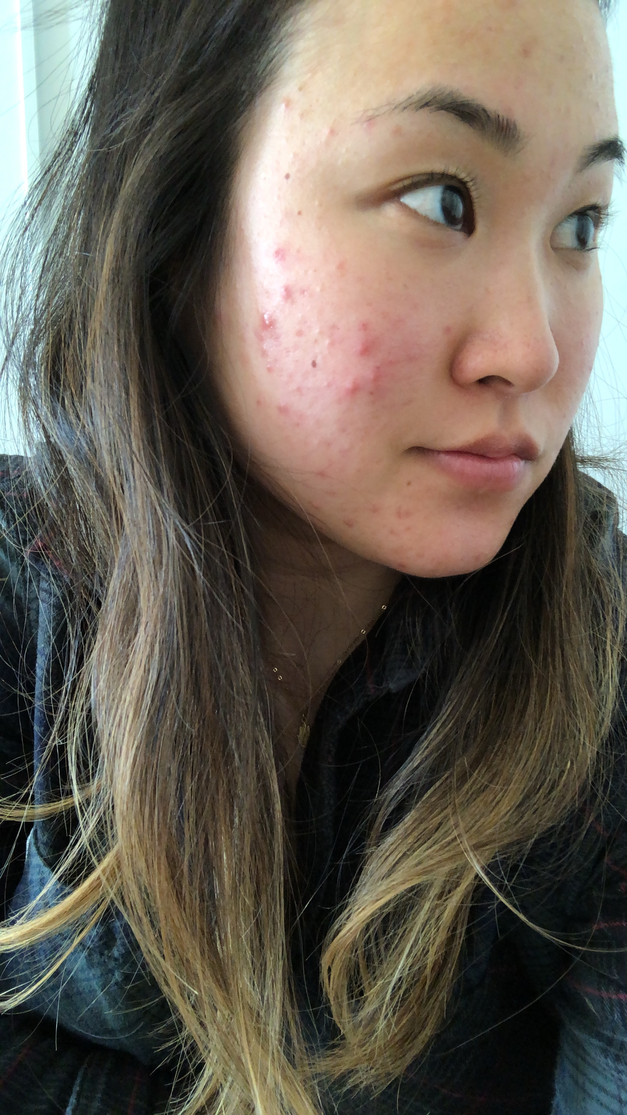 My Hormonal Acne Journey: Healing + Managing Acne — living