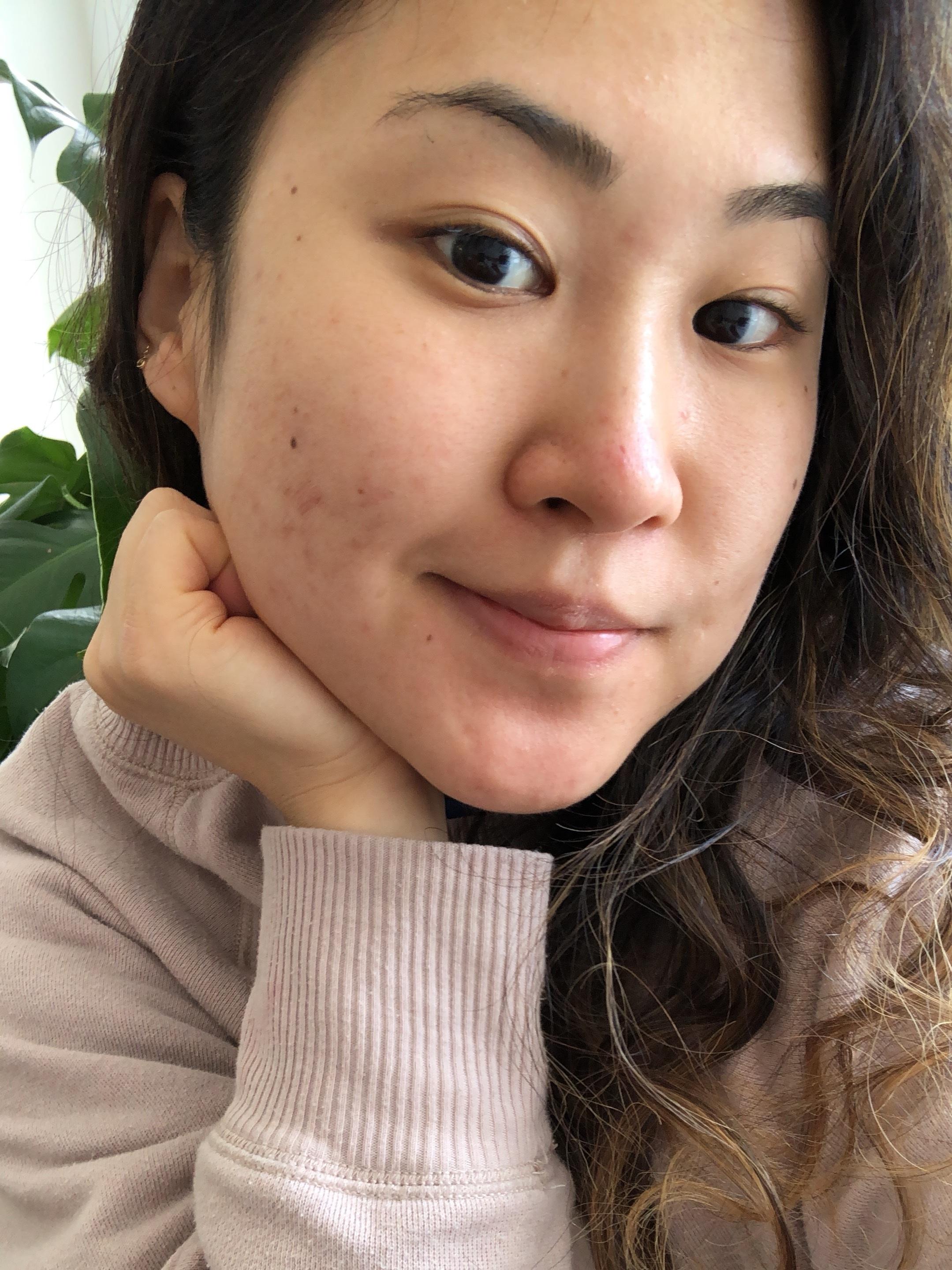 2 Days Ago, February 2019-- no makeup, no editing