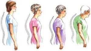 aging spinal curve.jpg
