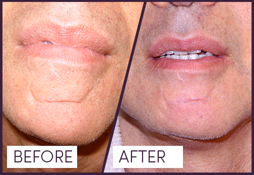 Dermal Filler with Restylane