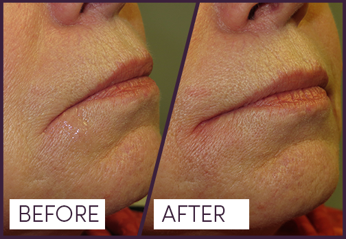 Dermal Filler to lift downward turn of lip