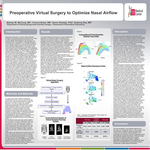 Preoperative Virtual Surgery to Optimize Nasal Airflow (click to see zoomable PDF of poster)