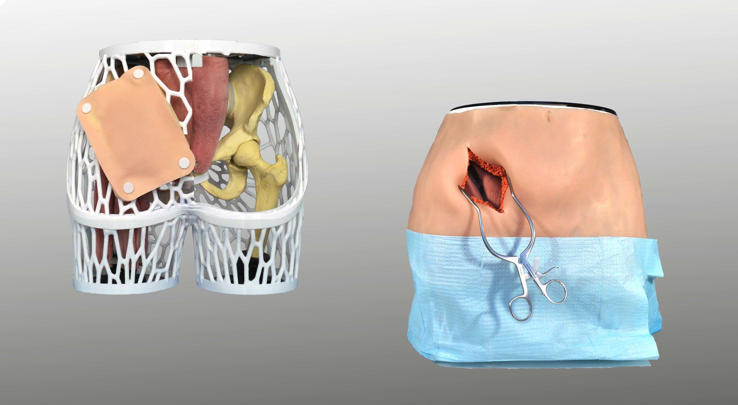 HumanX Beckenchirurgietrainer Hip TEP
