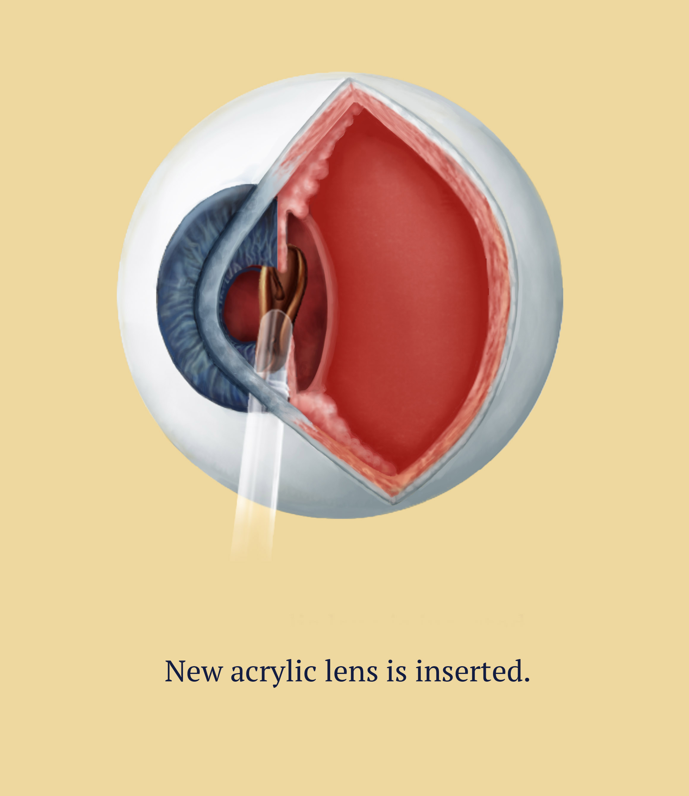 Cataract Surgery, 4 of 6, Illustration