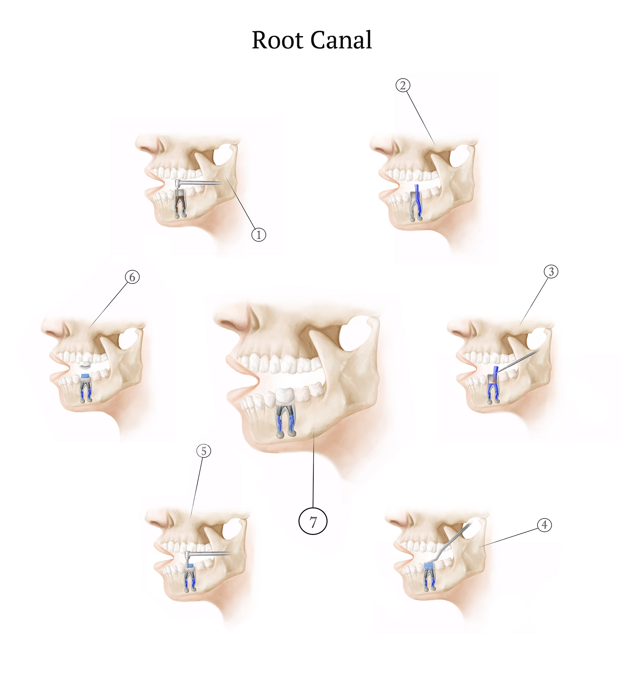 Root Canal Procedure, Illustration