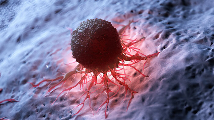 Human Cancer Cell