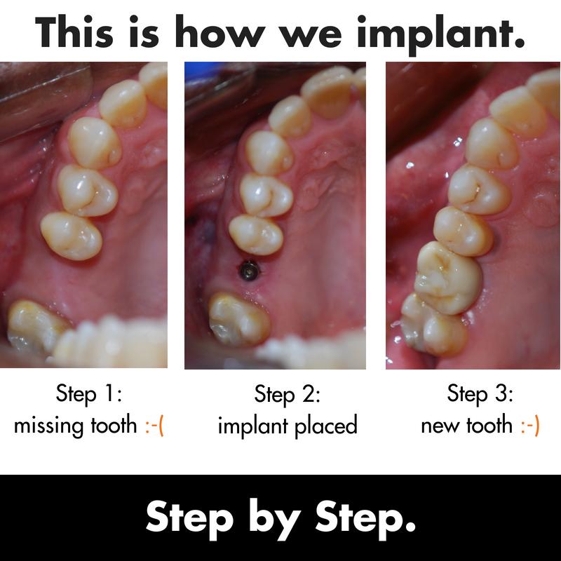 180707 Implant copy.png