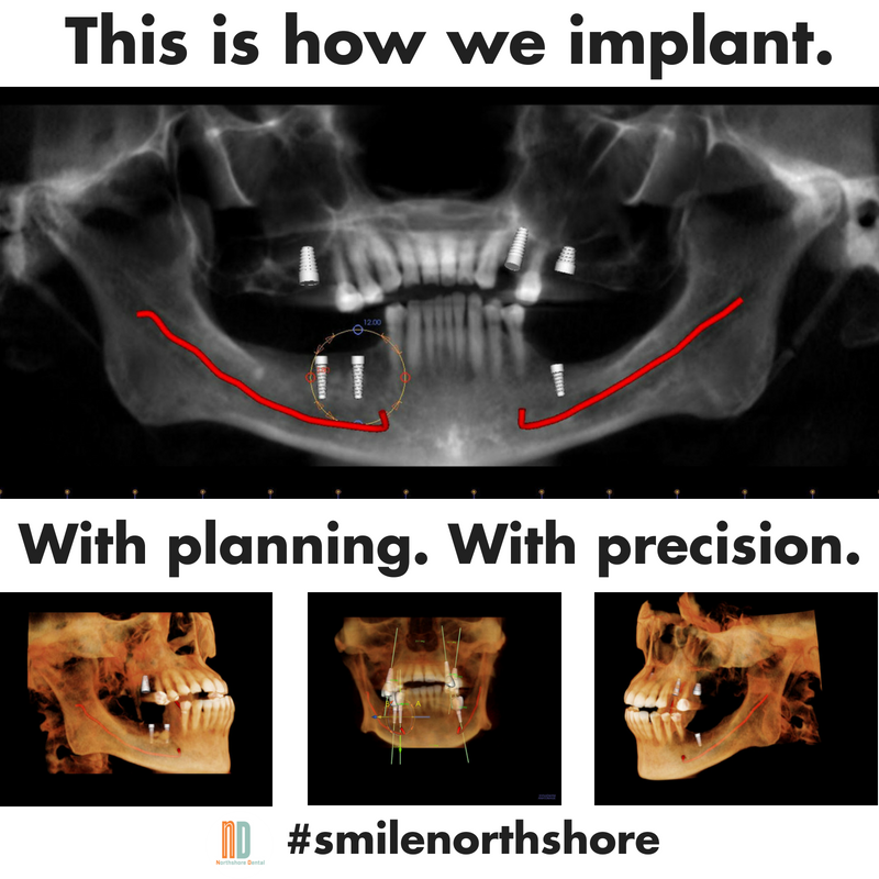 180602 Dental Implant.png