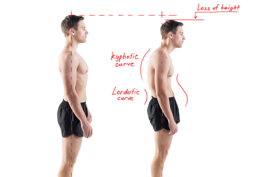 Posture correction - Ultimate Health Personal Training Center - Los Angeles