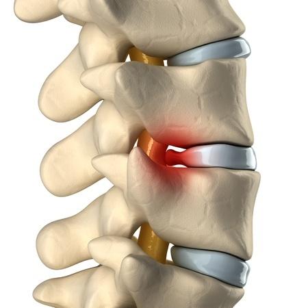Image of bulging disc - Ultimate Health Personal Trainer - LA