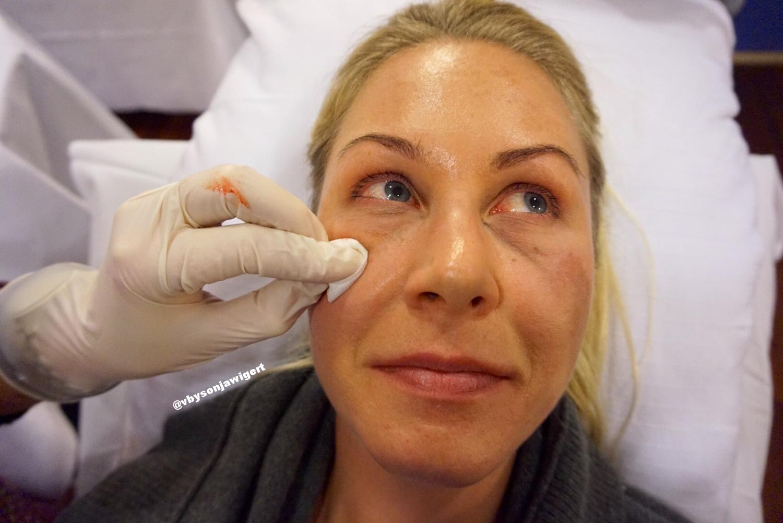 Her har vi akkurat behandlet det ene øyet med 0,5 ml Teosyal® PureSense Redensity [ II ], hvilket gir tydelige umiddelbare resultater. Ser du forskjellen allerede?