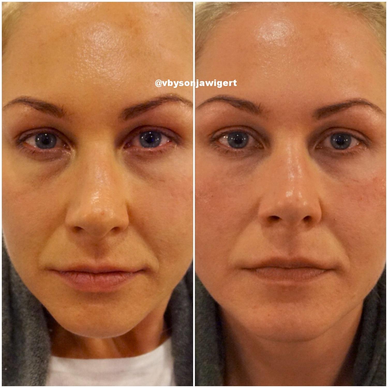 Før og etter behandling med Teosyal® PureSense Redensity [ II ]. (Bildene er tatt umiddelbart etter behandling og er ikke retusjert. Det endelige resultatet er først tydelig etter ca. to ukers tid.)