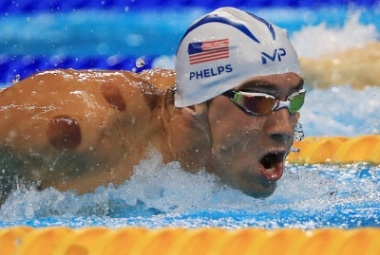 What has 19 gold medals and looks like he was kidnapped by alien leeches?