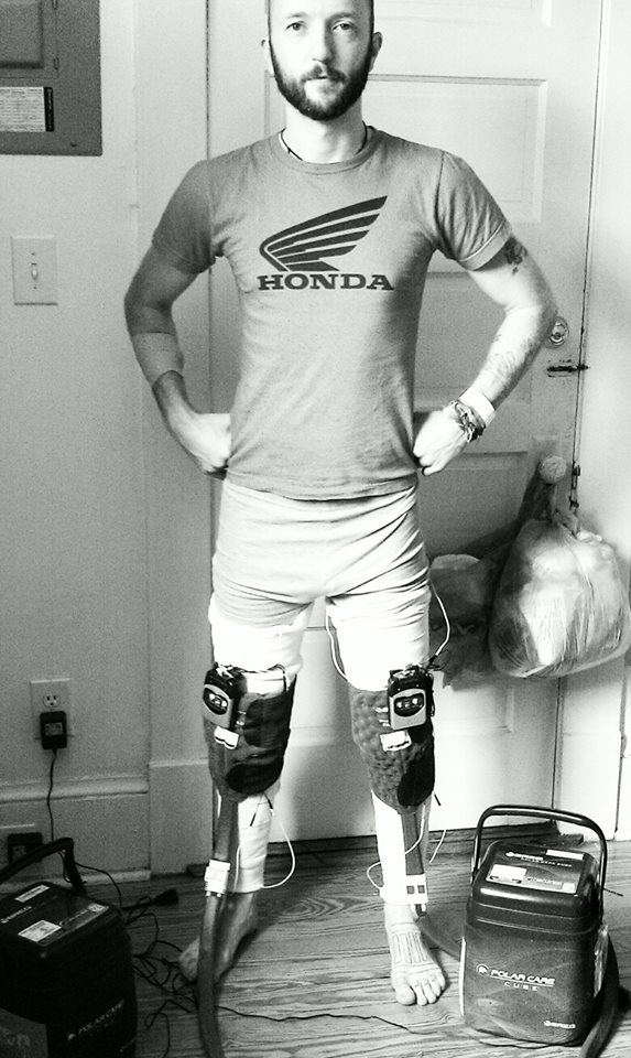 Rob (Heavy-D) is getting ready to own summer. Stage 1 of his super-enhanced Voltron knee implants have been installed. Space monsters, beware.