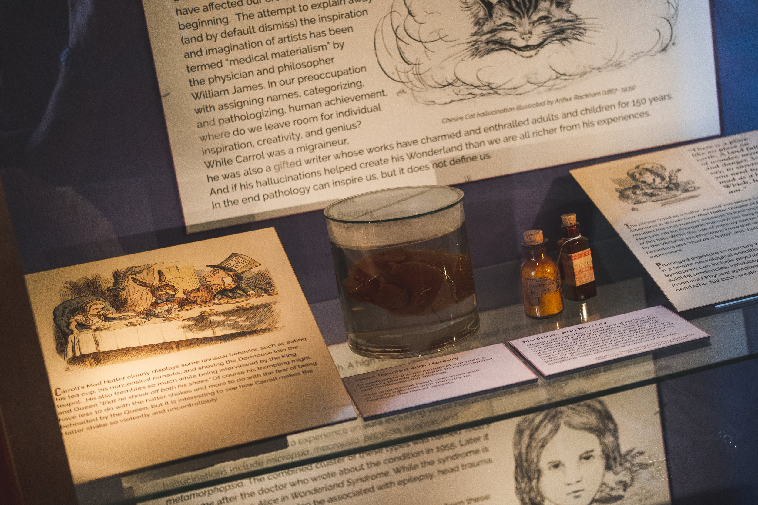 2019_MUTTER MUSEUM_MUSEUM_THE PHILLY CHECKLIST-5.jpg