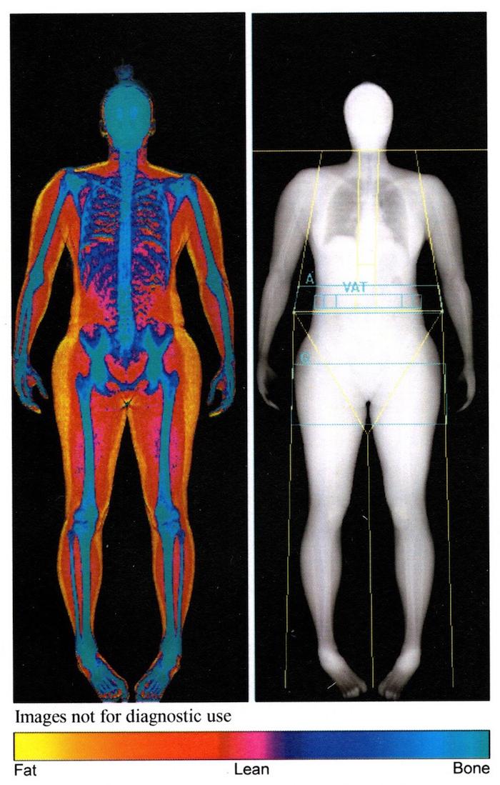 DEXA Body Images