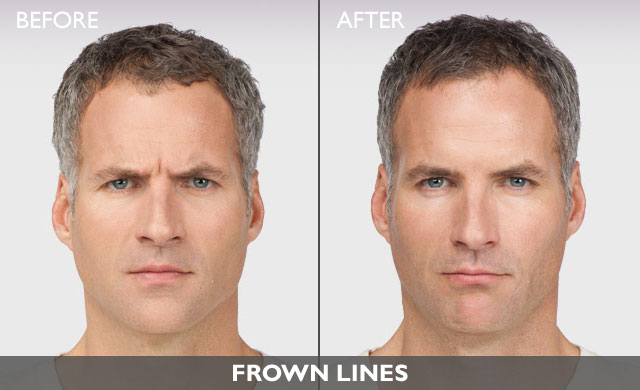 Botox for Men's Frown Lines