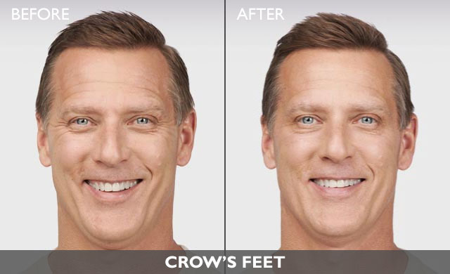 Botox Men Before and After