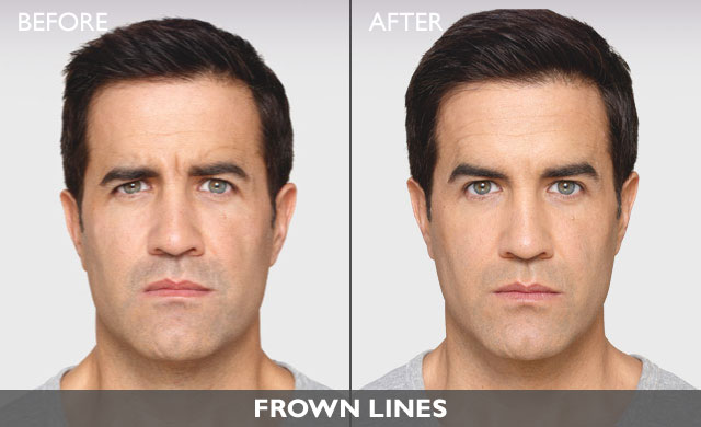 Men's Botox Before and After