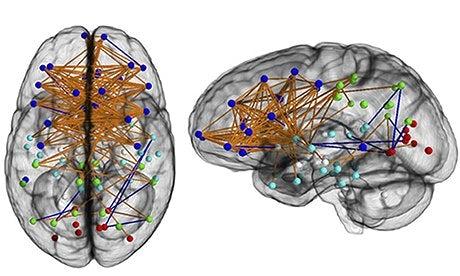 Female-brain-008.jpg