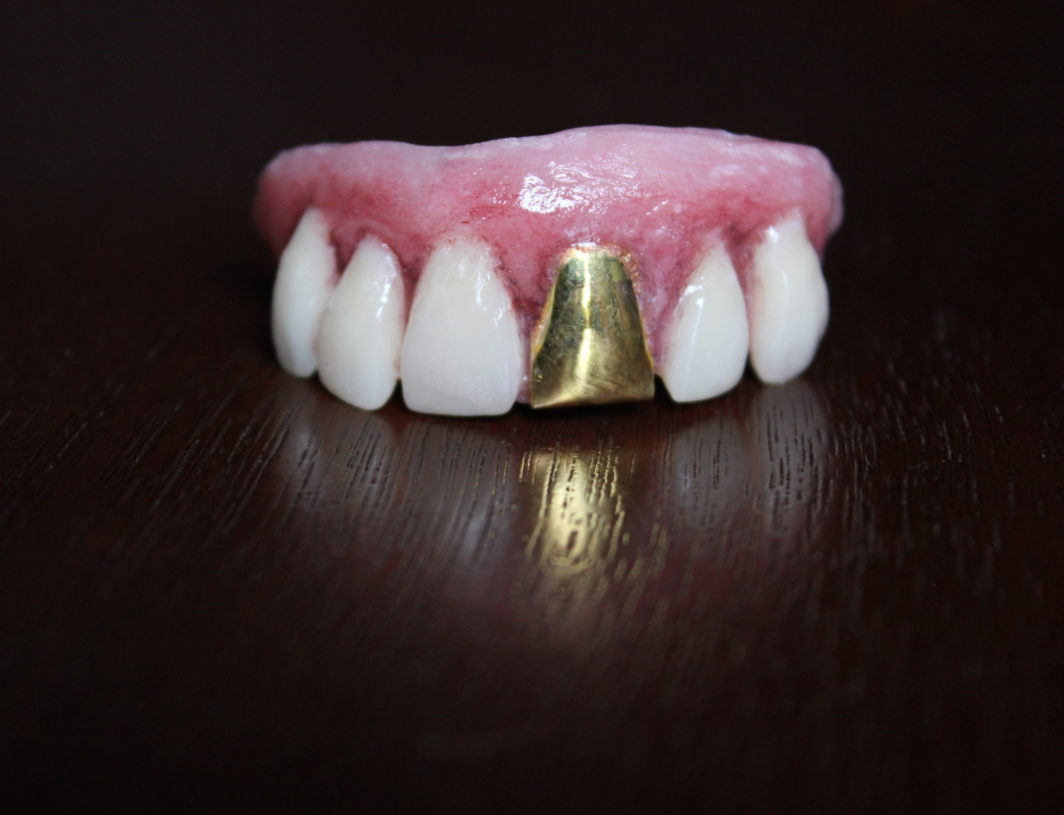Gary gold tooth