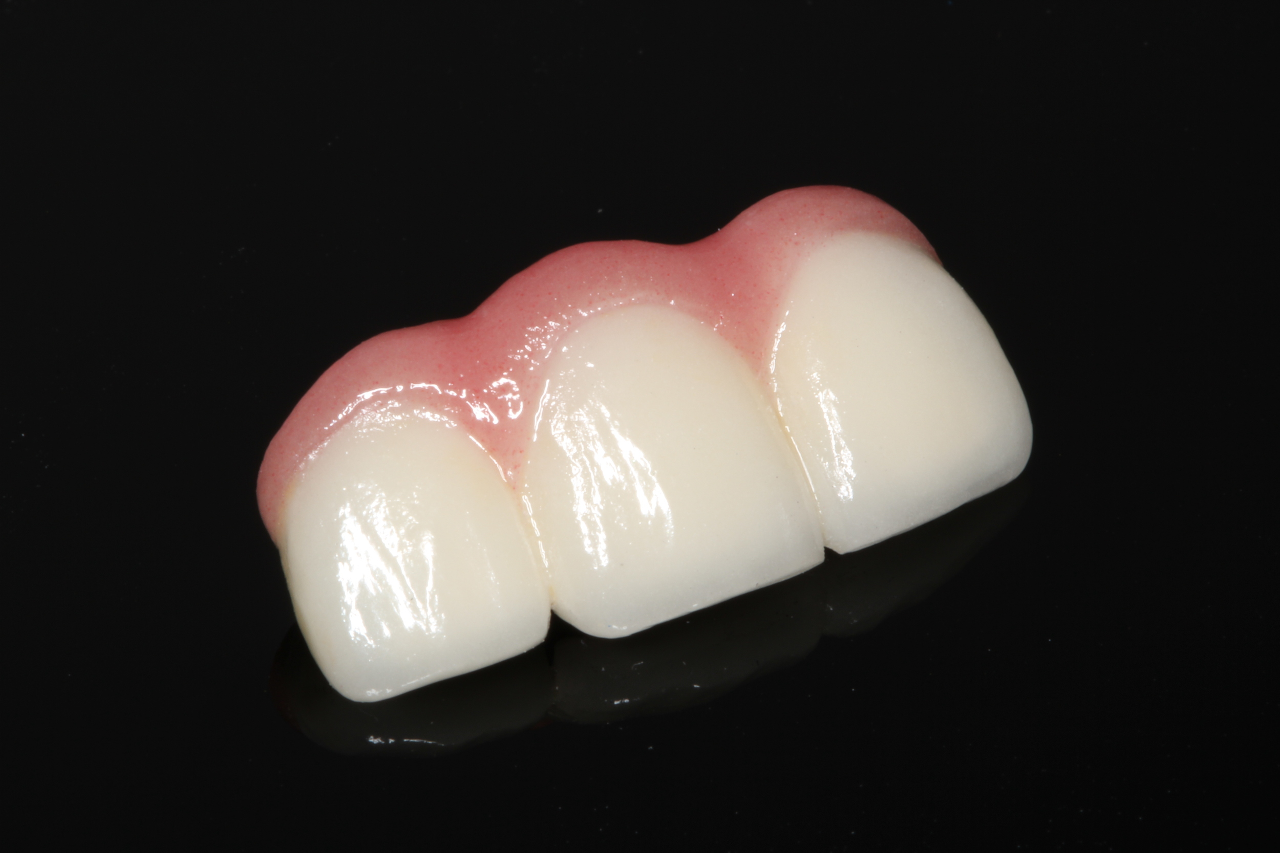 Dental implants and dentures in Reno, NV