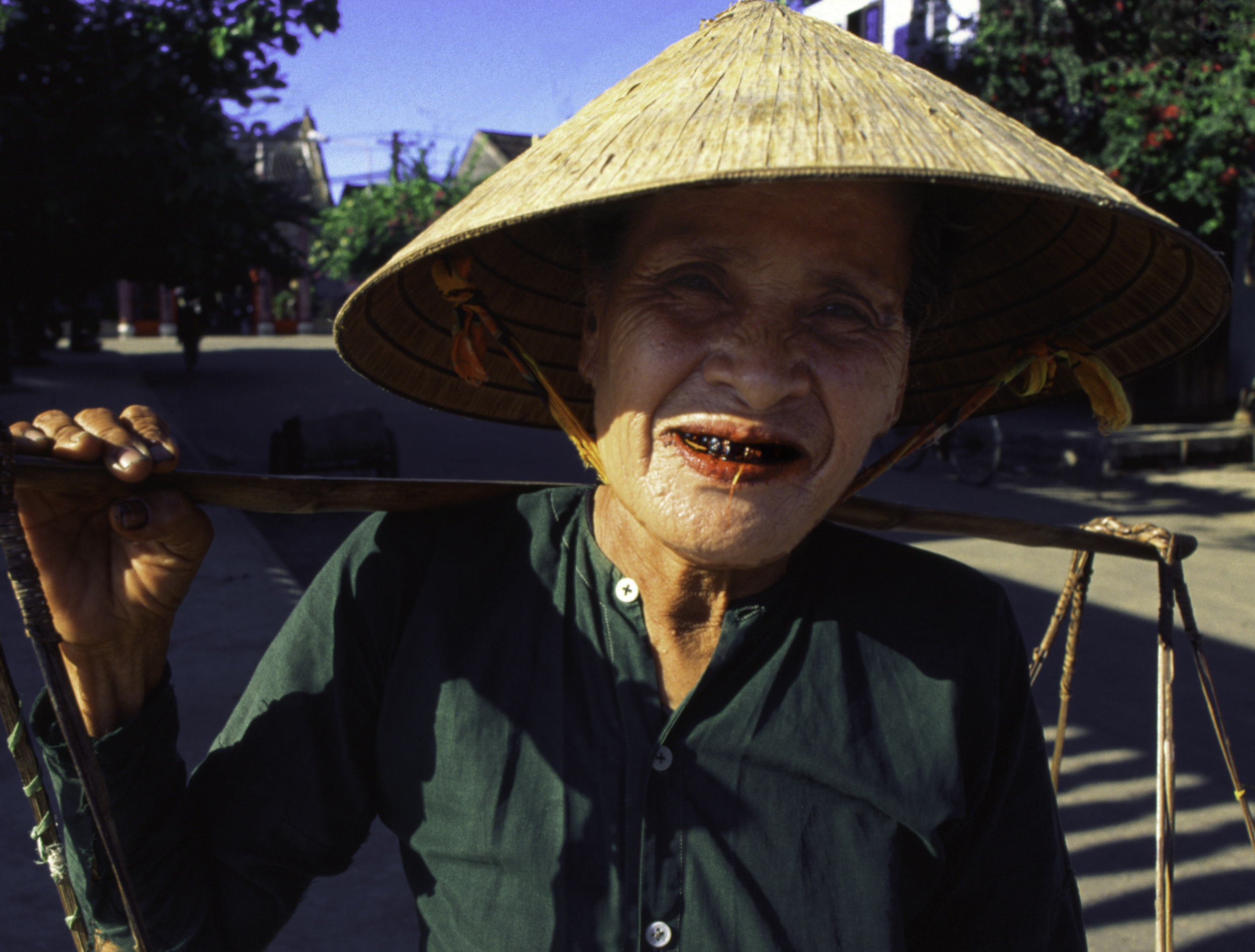 HOAN_WOMAN_TEETH-c2.jpg