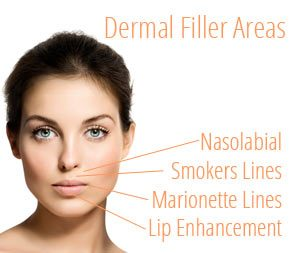 Dermal Fillers - As we age the skin loses its elasticity causing our facial expressions to develop lines and hollows. Common examples are the lines at the side of the mouth ie from the nose to the sides of the mouth. Dermal fillers are very safe injectable gels which provide hydration and structure to smooth away the appearance of lines, wrinkles and creases, and enhance facial shape. They are used to plump up and temporarily fill in these lines which have developed, and can be used alone or in combination with botulinum toxin.