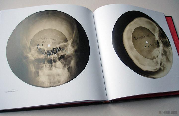 X-Ray-AudioBookinside3-720x467.jpg