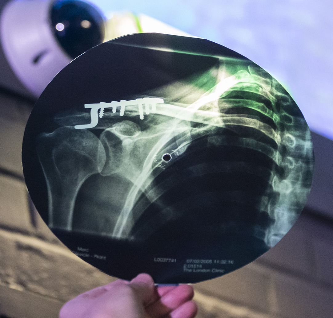 Marc's X-ray record with his performance of a Vadim Kozin song