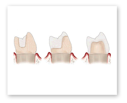 Dr. Koczarski can restore your teeth with inlays or onlays.
