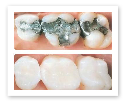 Dr. Koczarski can transform your smile with composite tooth-colored fillings.