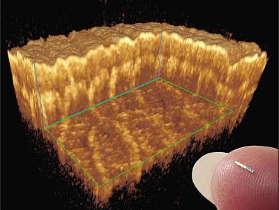 Human Skin - 20um isotropic resolution - taken with a 1550nm Insight Akinetic Laser - Image Credit - Medical University of Vienna