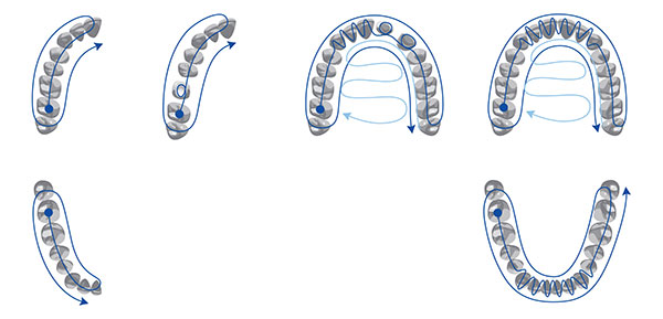 Figure 8.Scan pattern recommended for quadrant and full-arch scanning (TRIOS).