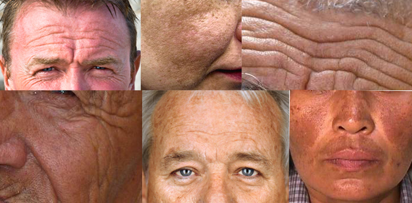 Signs of aging that can appear prematurely in cases of vitamin C deficiency