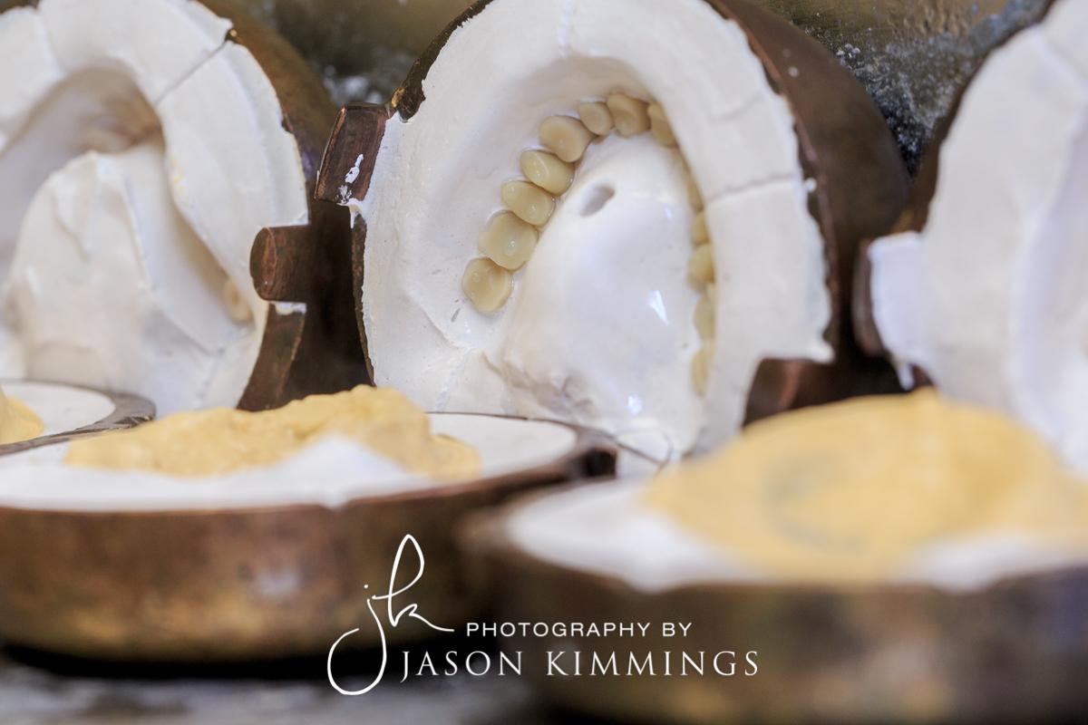Dental-photography-glasgow-edinburgh-scotland-7.jpg