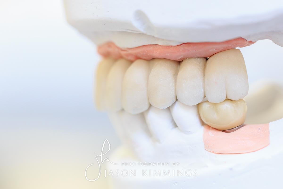 Dental-photography-glasgow-edinburgh-scotland-15.jpg