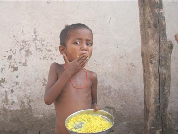malnourished child GANA.JPG
