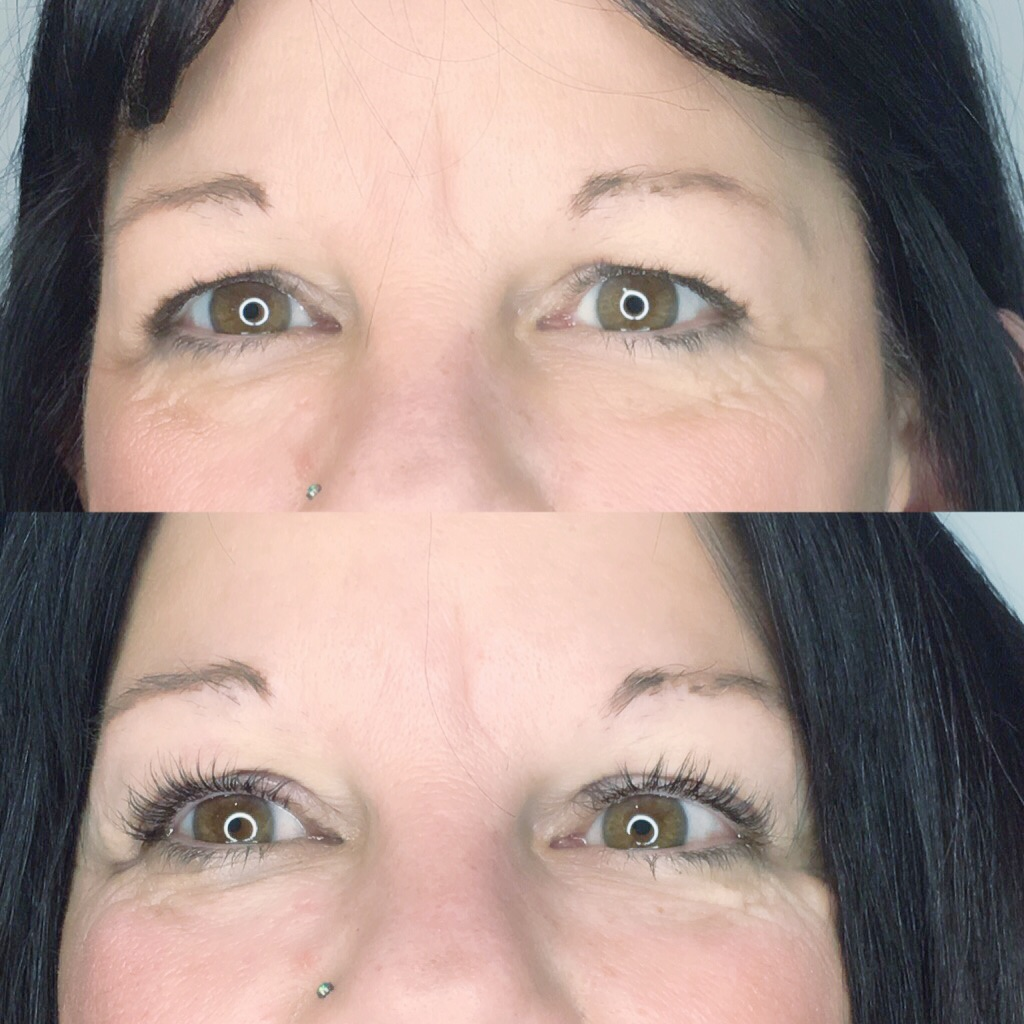 I mean look at the eyelid lift that's unreal!! Magic happens at EmbellishU!!
