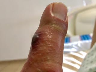 bug bite in Mexico