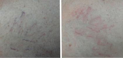 Telengectasie arti inferiori - immediatamente dopo Laser Diodo 940