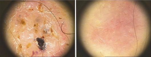 valutazione dermatoscopica prime e dopo trattamento della lesione a livello della tempia.