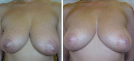 Innalzamento seno - dopo 2 mesi dalla quinta seduta
