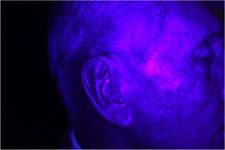 Tipica fluorescenza rossa dopo applicazione dell' ALA . La molecola si accumula nei tessuti lesionati