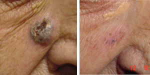 Carcinoma basocellulare. Due applicazioni. Tecnica integrate con laser frazionale