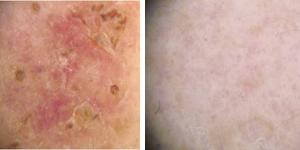 Dermatoscopia. Scomparsa della lesione